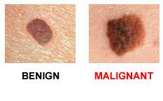 Skin Cancer Awareness- Melanoma - Valley Healthcare System